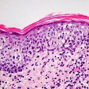 Micosi del cane al microscopio
