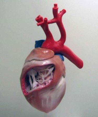 Filaria in sede cardiaca